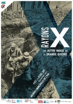 rayons-X
